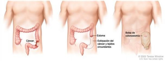 anticancerfund_org_colostomia